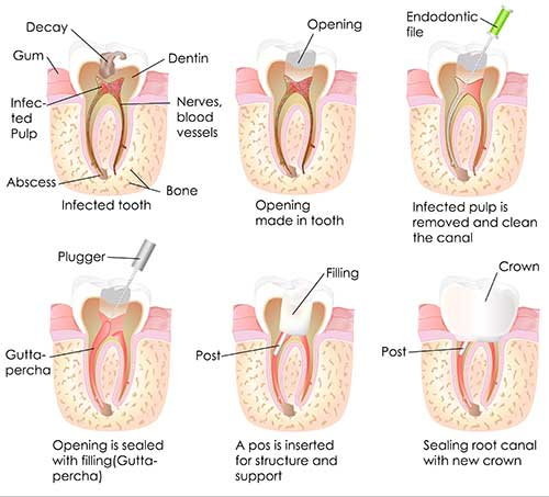 Root Canals in Speedway